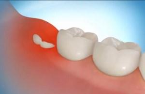 симптомы роста зуба мудрости