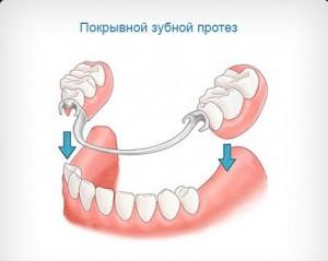 что такое покрывной зубной протез?