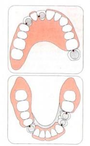 покрывной зубной протез - цена