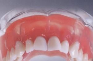 какие зубные протезы лучше вставить