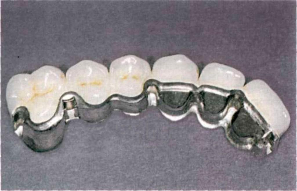 Фото мостовидного протеза