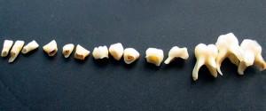 строение зуба картинки